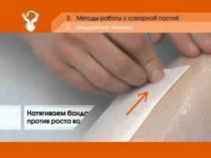 Техника бандажного шугаринга