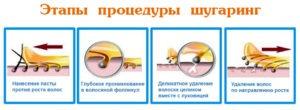 Фото: Как правильно наносить и срывать пасту для шугаринга