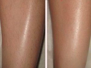 Фото - отзыв: Результат: ноги после шугаринга