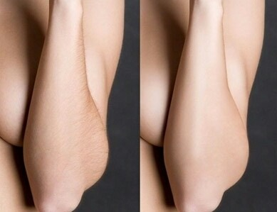 Фото - отзыв: Результат: руки после шугаринга