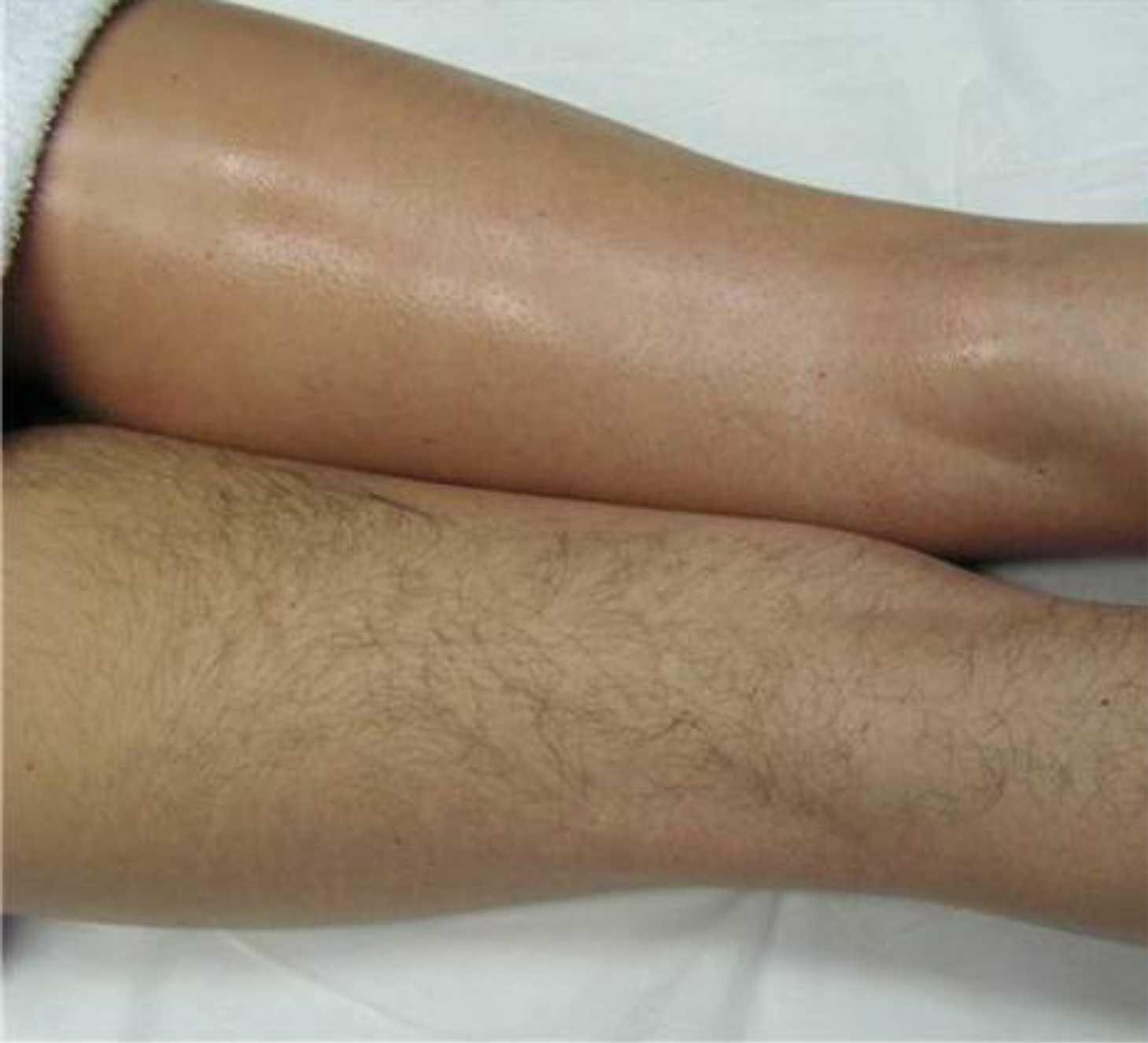 Эпиляция воском: длина волосков перед началом процедуры